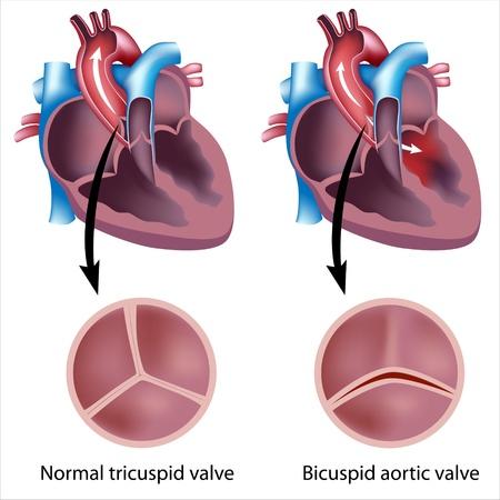 adult heart disease aortic valve