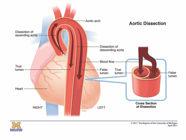 What Is Aortic Dissection