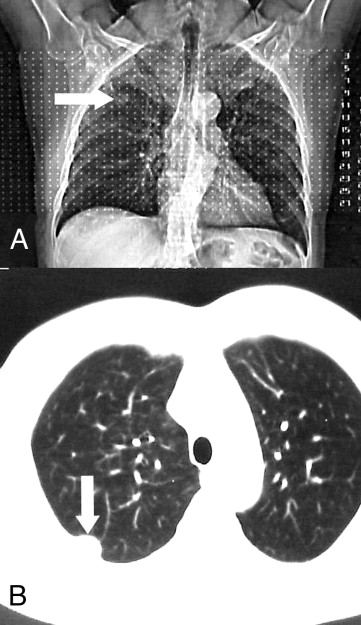 CT scan reveals tumor in the chest wall (arrows)