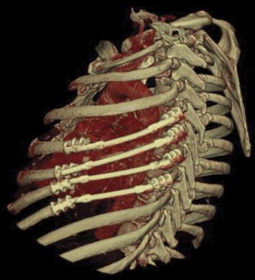3D CT reconstruction showing titanium rib bridges