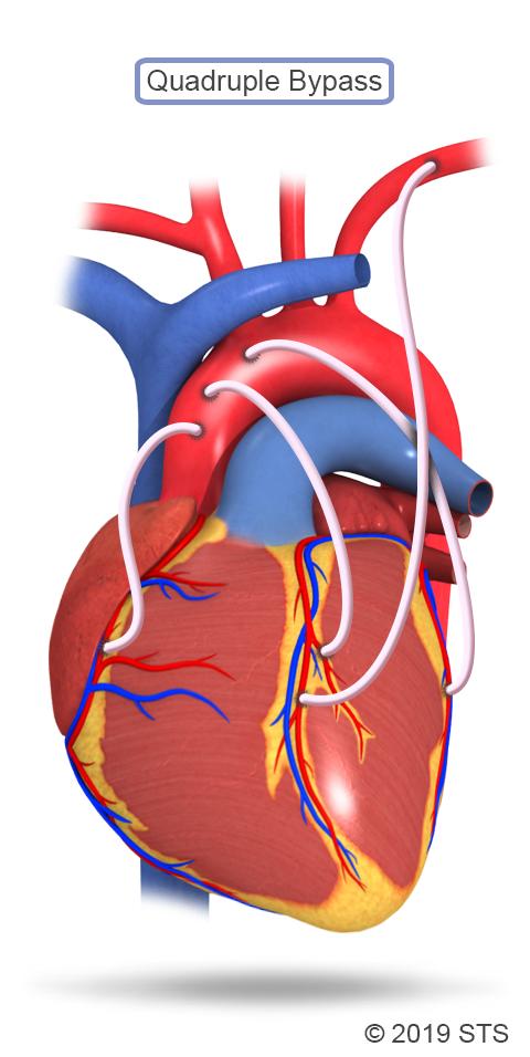Gastroepiploic Artery Graft: Coronary Artery Bypass Graft