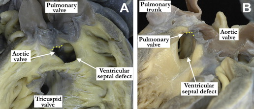 Two images of doubly committed juxtaarterial ventricular septal defects