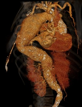 3D CT reconstruction of a descending thoracic aneurysm