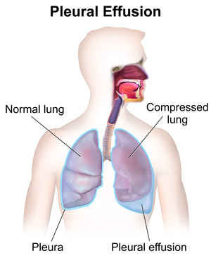 Pleural Diseases The Patient Guide To Heart Lung And