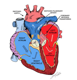 Illustration of heart with repaired TGA