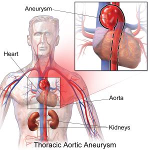Cat Vs Human Aorta